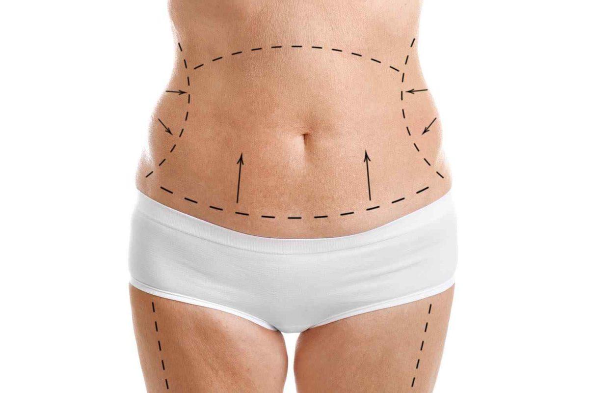 cosmetic-surgery-blog-05-1-1200x800.jpg