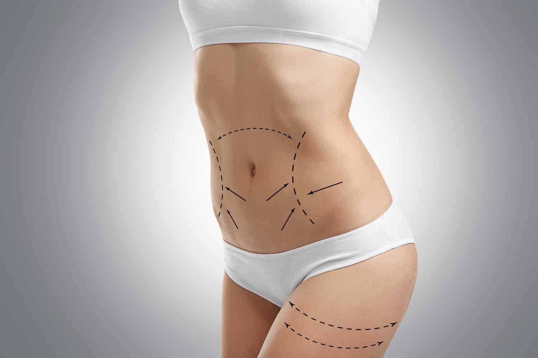 https://www.dentments.com/wp-content/uploads/2017/08/cosmetic-surgery-blog-06-1.jpg