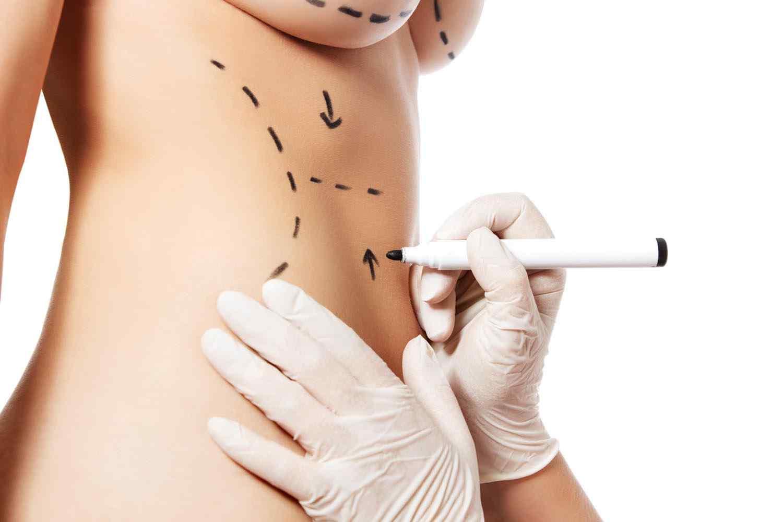 https://www.dentments.com/wp-content/uploads/2017/08/cosmetic-surgery-blog-11-1.jpg