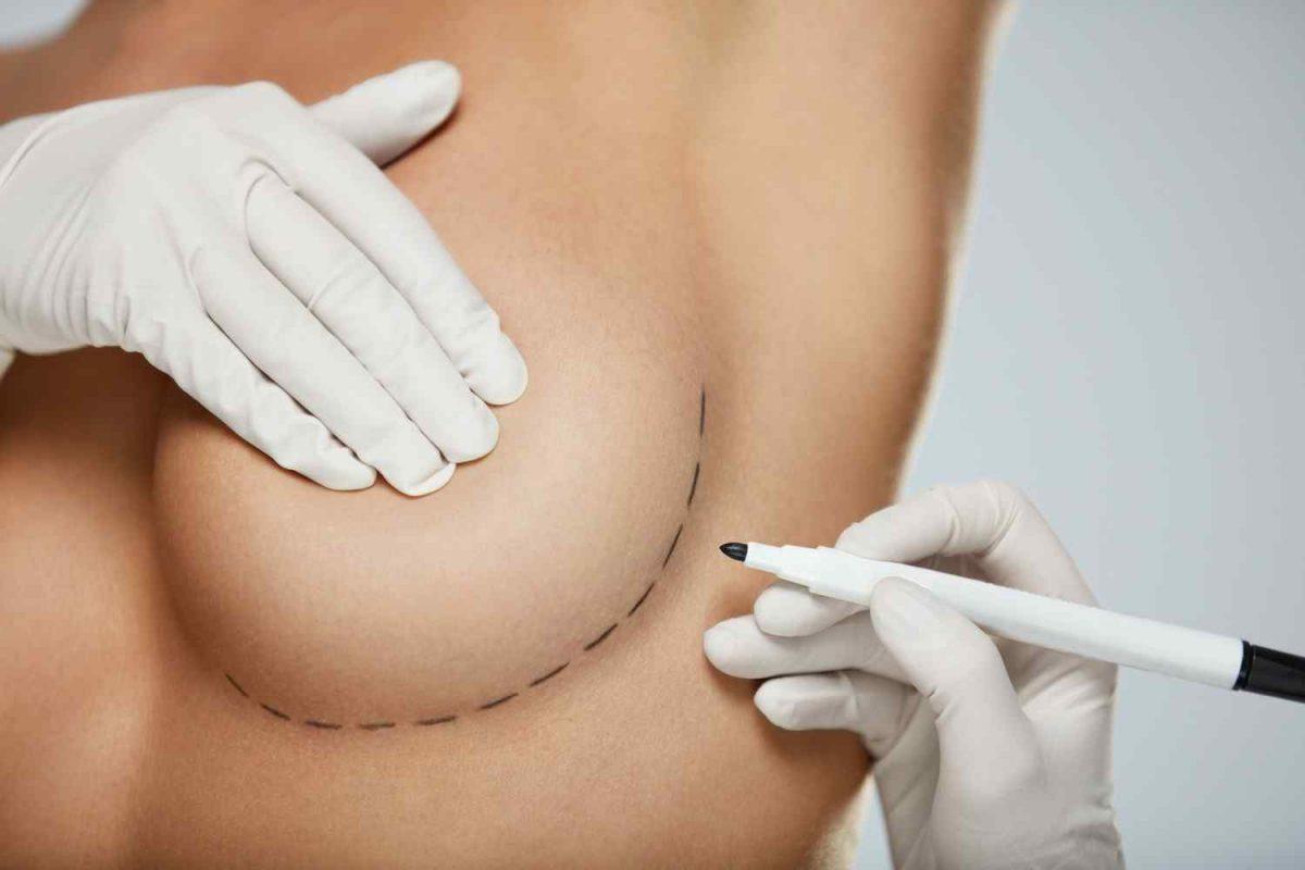 cosmetic-surgery-blog-12-1-1200x800.jpg