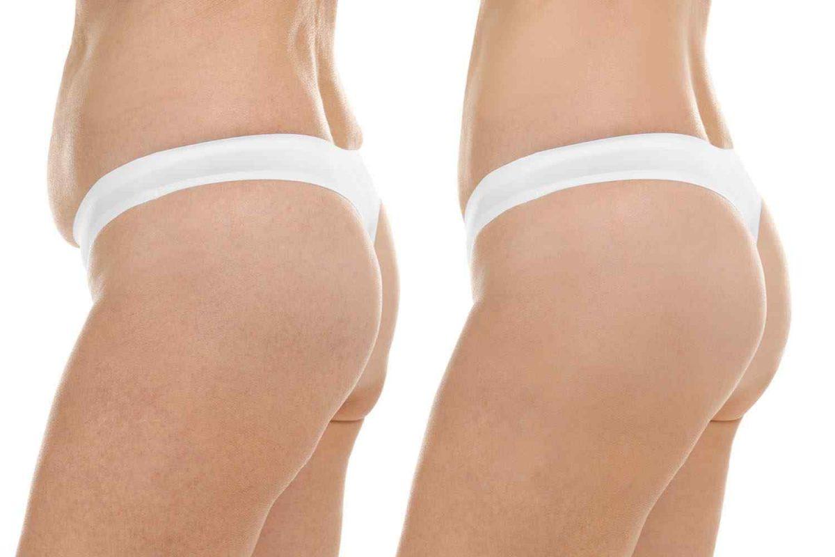 cosmetic-surgery-blog-18-1-1200x800.jpg